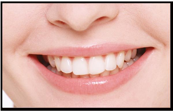 Lisa 歯並び